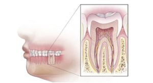 Root Canal vs Pulling Tooth: Dental profile view Human teeth and root structure.